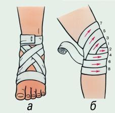 Крестообразные повязки на голеностопный (а) и на коленный (б) суставы. Цифрами указана последовательность наложения туров бинтов.