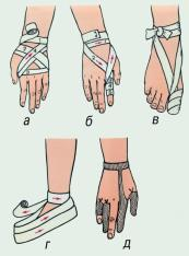 Бинтовые повязки на верхнюю и нижнюю конеч-ности: а - на кисть и лучезапястный сустав; б - на II палец кисти; в - на I палец стопы; г - на всю стопу; д - сетчатая повязка на пальцы кисти.